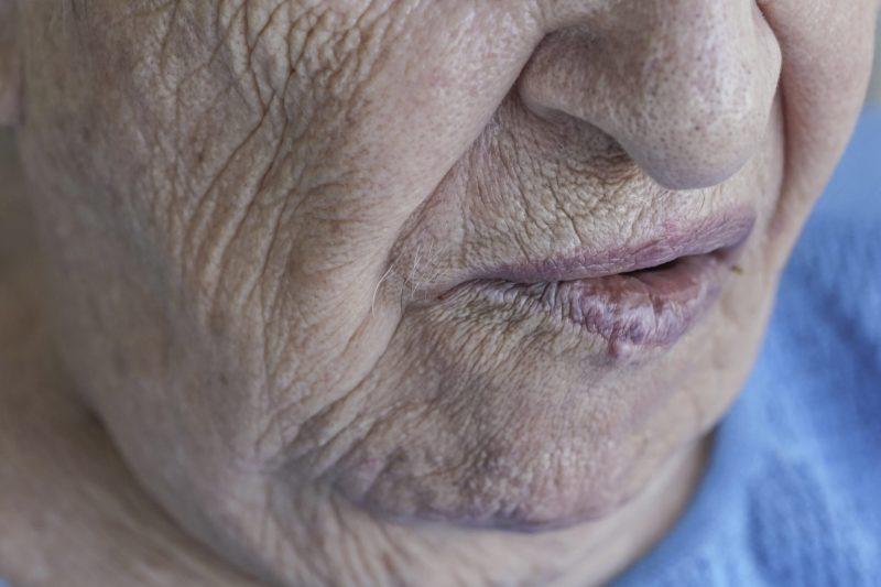 Closeup mouth of a senior person who has facial palsy